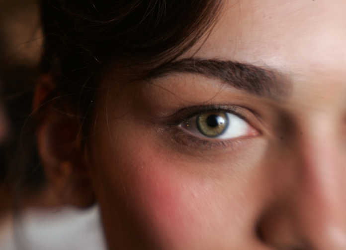 occhi problemi di salute