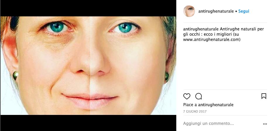 migliore crema antirughe a 50 anni