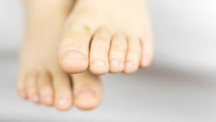 Perché le unghie dei piedi diventano gialle