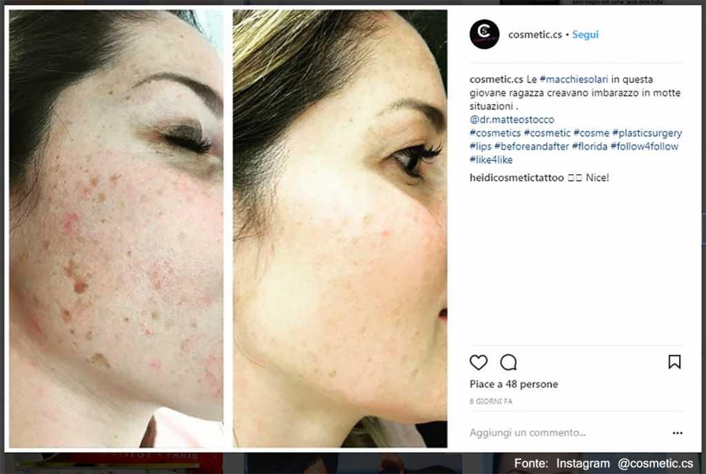 Macchie prima e dopo - Fonte: Instagram @cosmetic.cs